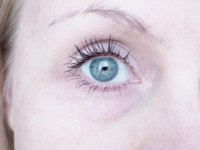 Kuivat silmänympärykset